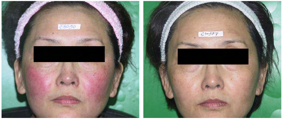 Thread Vein Removal Kerry - Safely Remove Thread Veins