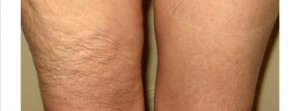 lipo-Before-and-after